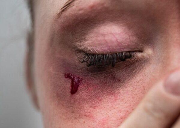 Ενδοοικογενειακή βία : Εκθεση-σοκ δείχνει ότι τετραπλασιάστηκαν οι καταγγελίες μέσα σε μια δεκαετία
